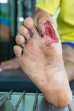 Blessure de pied diabétique Images stock