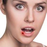 Blessure sur les lèvres femelles Image libre de droits