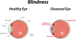 Blindness Royalty Free Stock Photography