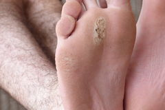 Blister on foot Stock Photo