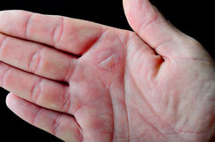 Blister on hand caused by a burn. stock images