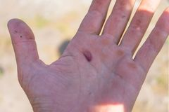 Blister in the middle of the palm, careless working, not good safety.  royalty free stock photography