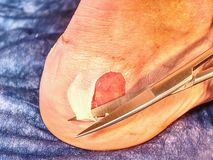 Blister from wrong boots and infection wound in the foot skin. Of patients stock image