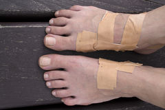 Blistrered feet with plaster patches Stock Image