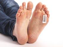 Bloße Füße eines toten Mannes im Leichenschauhaus Lizenzfreie Stockbilder