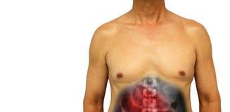Blockering för koloncancer och för liten inälva Mänsklig mage med den blockerade lilla tarmen för röntgenstråleshow som tack vare royaltyfria foton