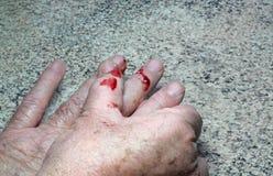 Blod från ett snittfinger. Arkivfoto