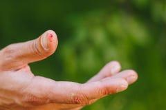 Blod på ett finger på en suddig grön bakgrund av gräs och träd Valkig hand av en hård arbetare Närbild valk förestående royaltyfria foton