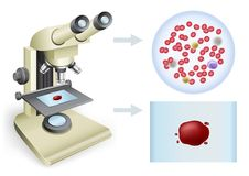 Blod under ett mikroskop Arkivfoto