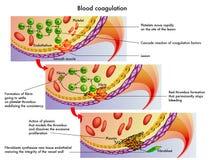 blodkoagulering Royaltyfri Bild