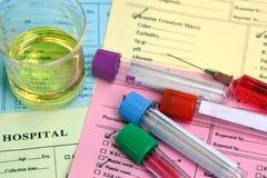 Bloed en urine voor gezondheidscontrole; Bloedmonsters en urime steekproef stock fotografie