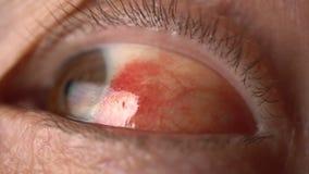 Bloed in het oog van gebroken bloedvat Bloeddruk dichte omhooggaand stock video