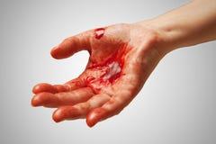 Bloed op hand Stock Foto's