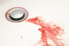 Bloed op waskom Royalty-vrije Stock Foto's
