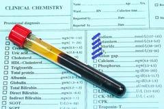 Bloed in reageerbuizen en onderzoeksvorm in laboratorium Stock Afbeelding