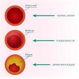Bloed Vectorbeeld stock illustratie