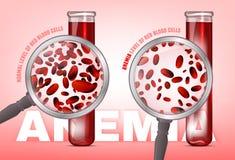 Bloedarmoedeniveau van bloedcellen vector illustratie
