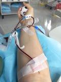 bloeddonatie in het het ziekenhuisbed royalty-vrije stock foto