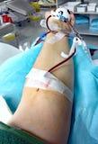 bloeddonatie in het het ziekenhuisbed royalty-vrije stock afbeeldingen