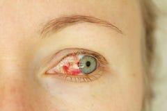 Bloeddoorlopen oog Vrouw met uitbarstingsbloedvat in oog Zeer rode bl stock foto's