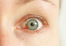 Bloeddoorlopen oog Vrouw met uitbarstingsbloedvat in oog Zeer rode bl royalty-vrije stock foto's