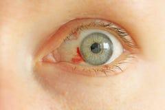 Bloeddoorlopen oog Vrouw met uitbarstingsbloedvat in oog Zeer rode bl royalty-vrije stock fotografie