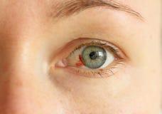 Bloeddoorlopen oog Vrouw met uitbarstingsbloedvat in oog Zeer rode bl stock afbeeldingen