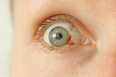 Bloeddoorlopen oog Vrouw met uitbarstingsbloedvat in oog Zeer rode bl stock foto