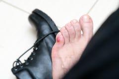 Bloedige vreselijke blaar op menselijke voeten met nieuwe zwarte leerschoenen die rond leggen royalty-vrije stock afbeelding