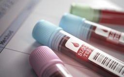 bloedonderzoekbuizen royalty-vrije stock afbeeldingen