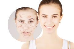Blond girl hunting for acne on her skin. Girl hunting for acne on her skin royalty free stock image