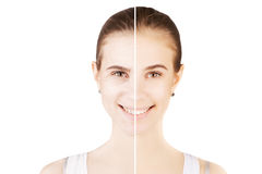 Blond woman releases her skin from age changings Stock Images