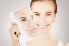 Blond woman releases her skin fron pimples Royalty Free Stock Photography