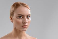 Blonde Dame mit Korrekturlinien auf Gesicht Stockfotos