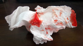 Blood bleeding on tissue paper. By accident tissue is easy to clean but non hygienic royalty free stock image