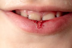 Blood on the boy`s lip. Macro stock photography