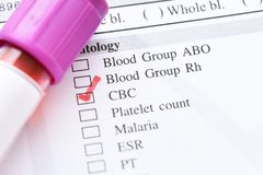 Blood for CBC test. Blood sample for complete blood count test royalty free stock photo