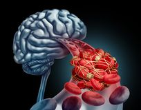 Blood Clot Brain Royalty Free Stock Images