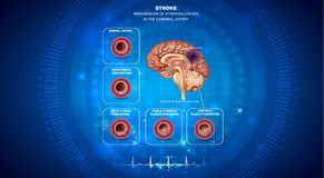Blood clot in the brain. Stroke, blood clot formation in the brain artery, brain damage. Abstract blue technology background with cardiogram Royalty Free Stock Photo