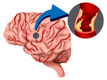 Blood Clot concept in the brain Stock Image