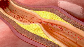 Blood clot in coronary artery. Coronary artery disease (CAD), also known as ischemic heart disease (IHD), atherosclerotic heart disease, atherosclerotic stock footage
