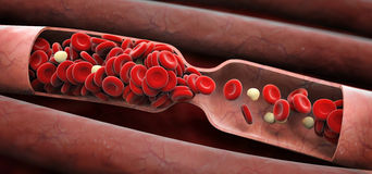Blood clot Stock Photo