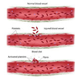 Blood clotting process. Blood coagulation upon injury of blood vessel, eps8 Royalty Free Stock Images