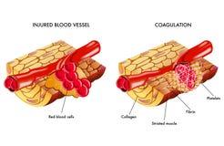 Blood coagulation. Medical illustration of the process of blood coagulation Stock Photo