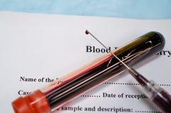 Blood collection for serum or plasma biochemistry examination stock photos