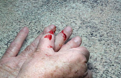 Blood from a cut finger. A mans hands with some blood on from a cut finger because of an accident in the house stock photo