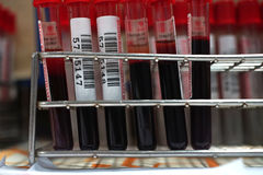 Blood donor at donation. Blood tubes Stock Photo