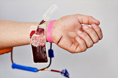 Blood donor hand with scratch on palm Royalty Free Stock Images