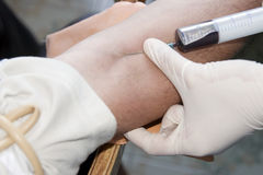 Blood extraction Royalty Free Stock Photos