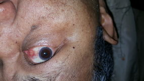Blood in Eye. A man with Eye having swollen blood vassels Royalty Free Stock Images